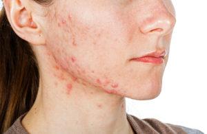 Piel mixta, grasa o con acné
