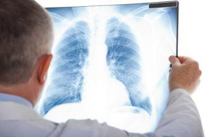 pulmonia neumonia